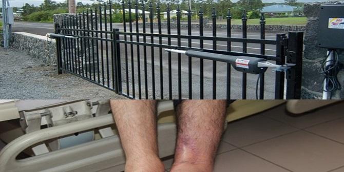 Otomatik Kapıya Ayağını Kaptırdı